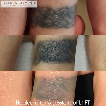 Lift body tattoo removal - ring tattoo 3