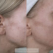 Microneedling Clementine Day Spa M2 left