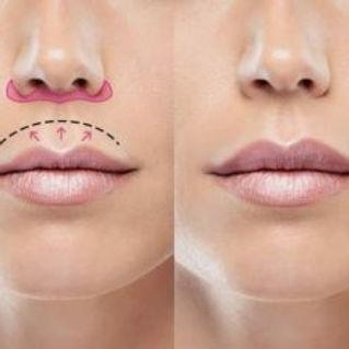 Lip Lift.jpeg