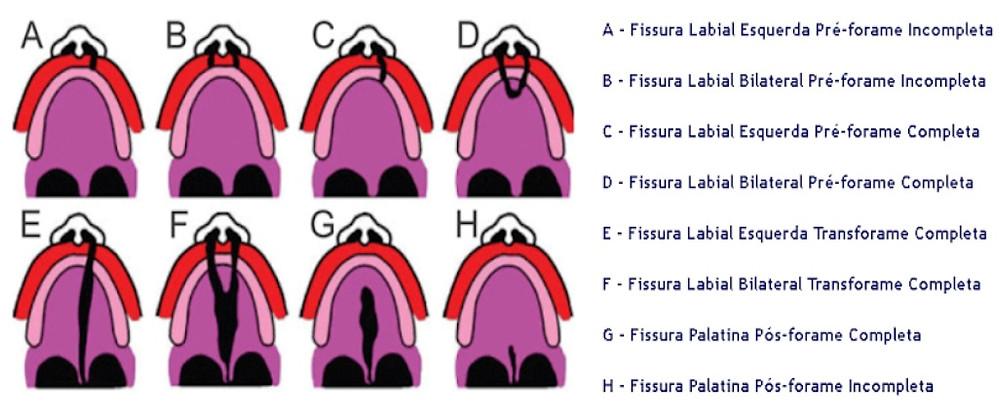 Classificação das fissuras labiopalatinas por Spina
