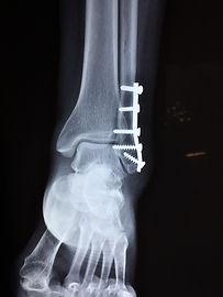 ankle-2253057_1920.jpg