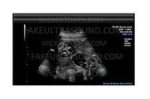 28-32 Week Fake Twins Ultrasound Gender Reveal