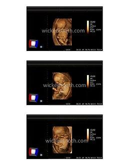 18 weeks 3D fetal ultrasound strip