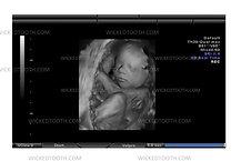36-42 Week Fetal Ultrasound Gag
