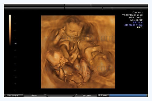 triplets sonogram fake