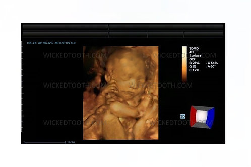 Boy fetal ultrasound 30-40 weeks