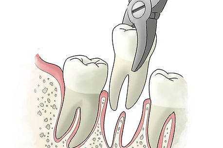 tooth-extraction.jpg