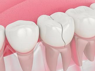 bigstock-cracked-tooth-350252323.jpg