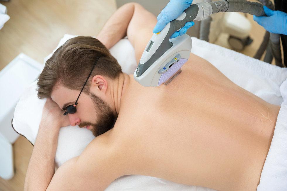 depilação-a-laser-masculina-preço.jpg