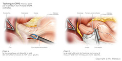 illustration chirurgie bariatrique