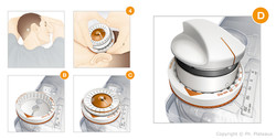 illustration médicale chirurgie