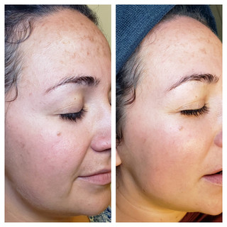 1 pca peel treatment