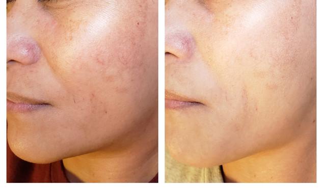 1 Pca Peel treatment