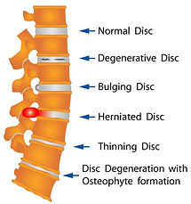 herniated disc.jpg