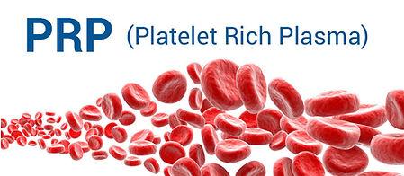prp-blog-img1-825x360.jpg
