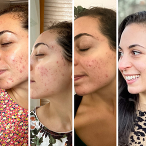 The Truth About Healing My Acne And The Approach That Gave Me My Food & Body Freedom Back