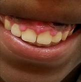 Practical Periodontics LLC | Periosmile Results | dentist in atlanta, best dentist in atlanta, dentists atlanta, dentist atlanta georgia,   periodontist atlanta, periodontist atlanta ga,    orthodontist in atlanta, best orthodontist in atlanta, best orthodontist atlanta, family orthodontics atlanta, orthodontics in atlanta, orthodontist atlanta georgia, orthodontist in atlanta georgia,