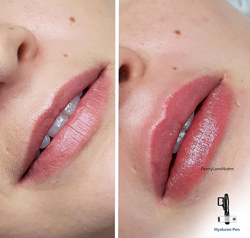 Pain Free Lip Filler Deposit