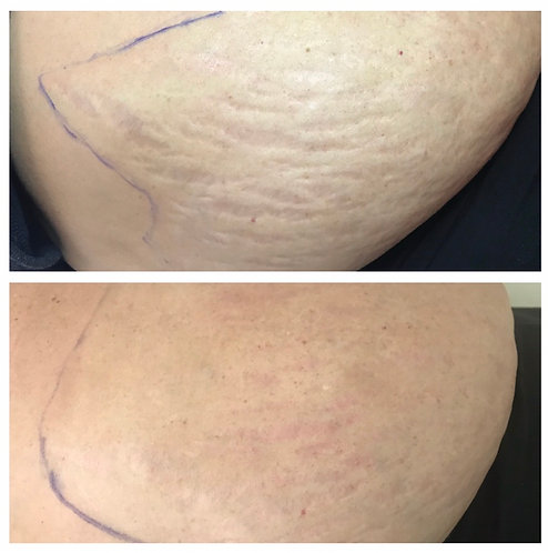 Scar & Stretch Mark Reduction/Removal Deposit