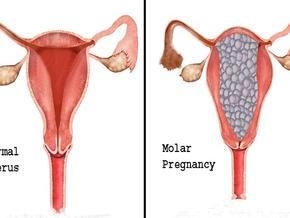 Vesicular molar pregnancy: Symptoms, Causes and Treatment