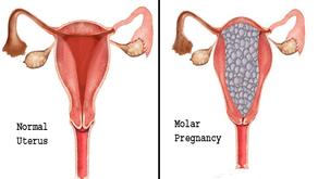 वेसिकुलर मोलर प्रेगनेंसी के लक्षण, कारण और उपचार