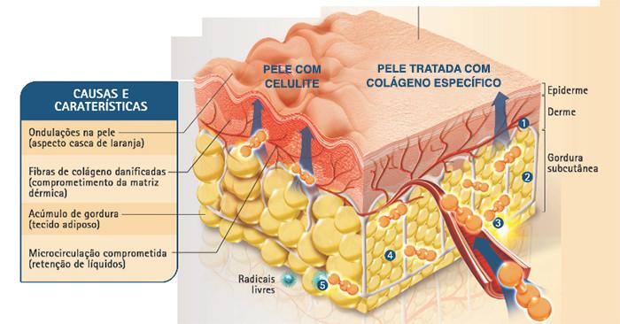Celulite vs pele tratada com colágeno