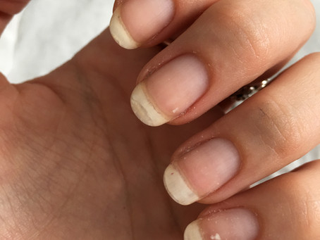 Does CND Shellac ruin your nails?