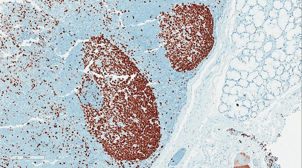 Histology ki67 immunohistochemistry