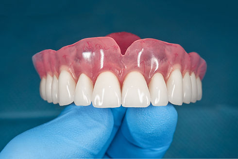 denture. Full removable denture of the u