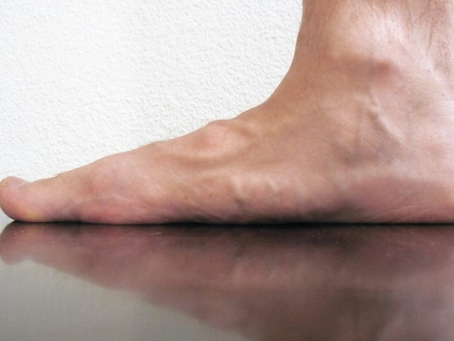 Low-arched or Flat Feet