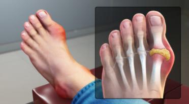 Gouty Arthritis