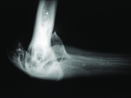Haemophilic Arthritis | An Introduction