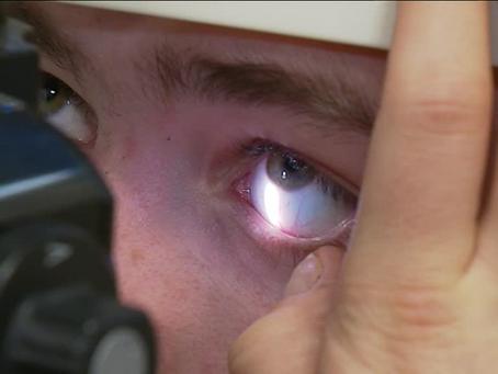 Le danger potentiel des lentilles de contact