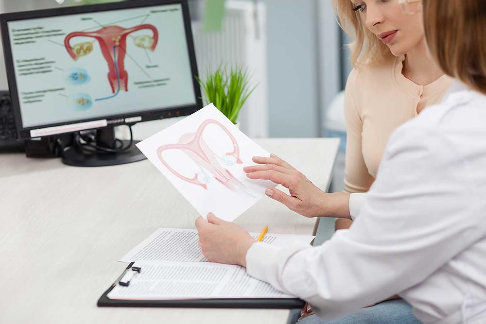 sindrome ovaio policistico micropolicistico olinorm e la donna ginecologo online consulto PCOS