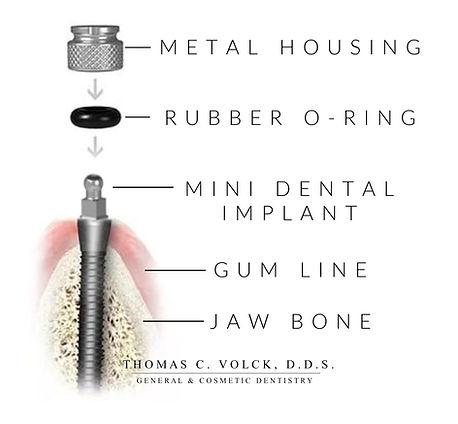 mini dental implants | Thomas C Volck D.D.S. | Anatomy of MDI placement | Dayton, Ohio