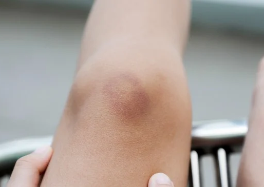 How to Get Rid of Bruises: 10 Natural Remedies