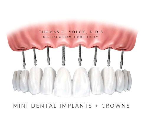 mini dental implants | Thomas C Volck D.D.S. | Implants with Crowns | Dayton, Ohio