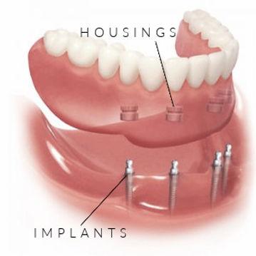 mini dental implants | Thomas C Volck D.D.S. | Housings and Implants | Dayton, Ohio