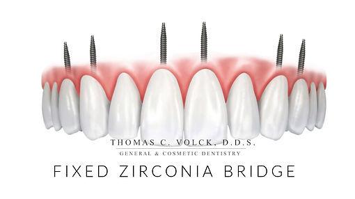 mini dental implants | Thomas C Volck D.D.S. | Fixed Zirconia Bridge | Dayton, Ohio