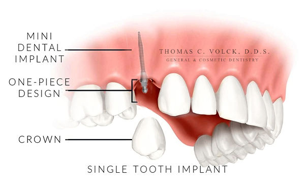 mini dental implants | Thomas C Volck D.D.S. | Single Tooth Replacement | Dayton, Ohio