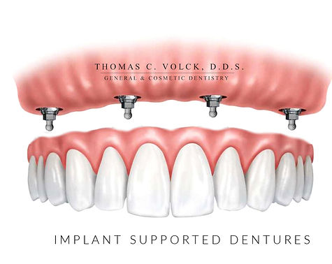mini dental implants | Thomas C Volck D.D.S. | Implant Supported Dentures | Dayton, Ohio