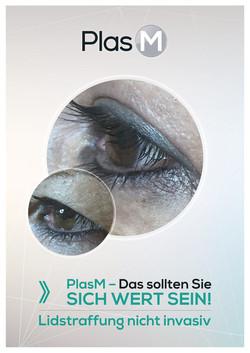 Oberlidstraffung ohne OP Köln