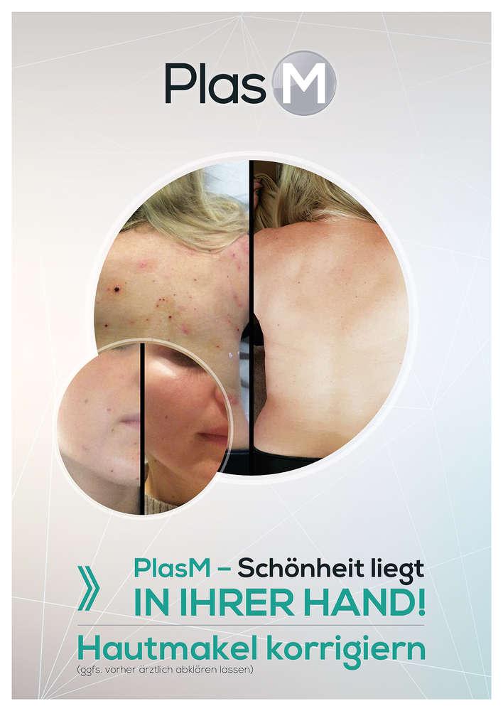 Plasmabehandlung Köln