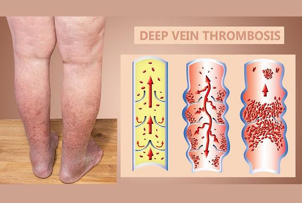 deep-vein-thrombosis_edited.jpg