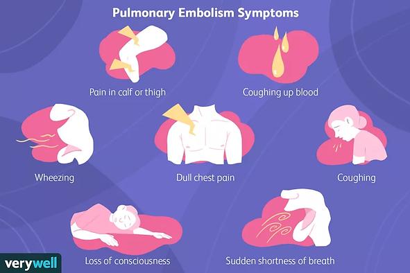 symptoms-of-pulmonary-embolus.png