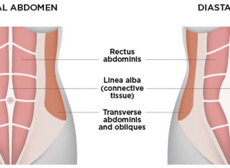 Diastasis Recti and when to seek help