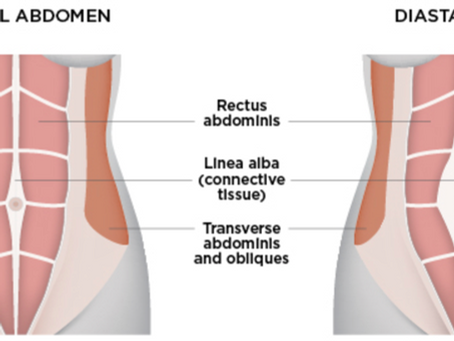 Diastasis Recti and when to seek help