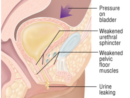 Pelvic Floor Incontinence: the differences, causes, and treatments