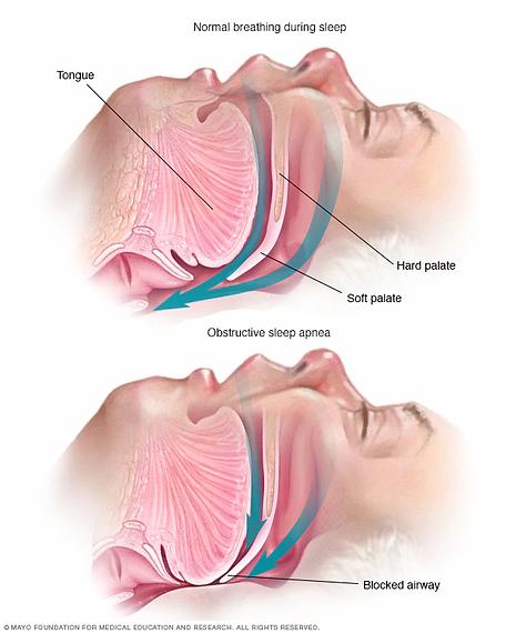 sl7_sleep_apnea-8col.webp