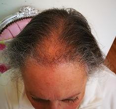 scalp before crop.jpg